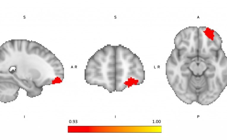 何清华教授团队中丹合作研究揭示食物成瘾的神经解剖学特征